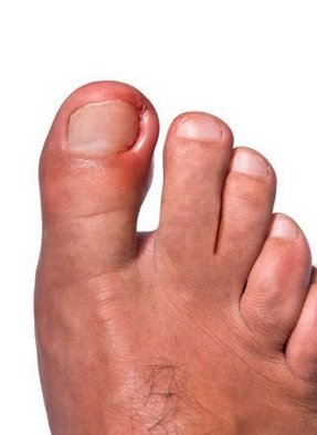 Delray Beach Podiatrist | Delray Beach Ingrown Toenails | FL | Delray Beach Podiatrist |